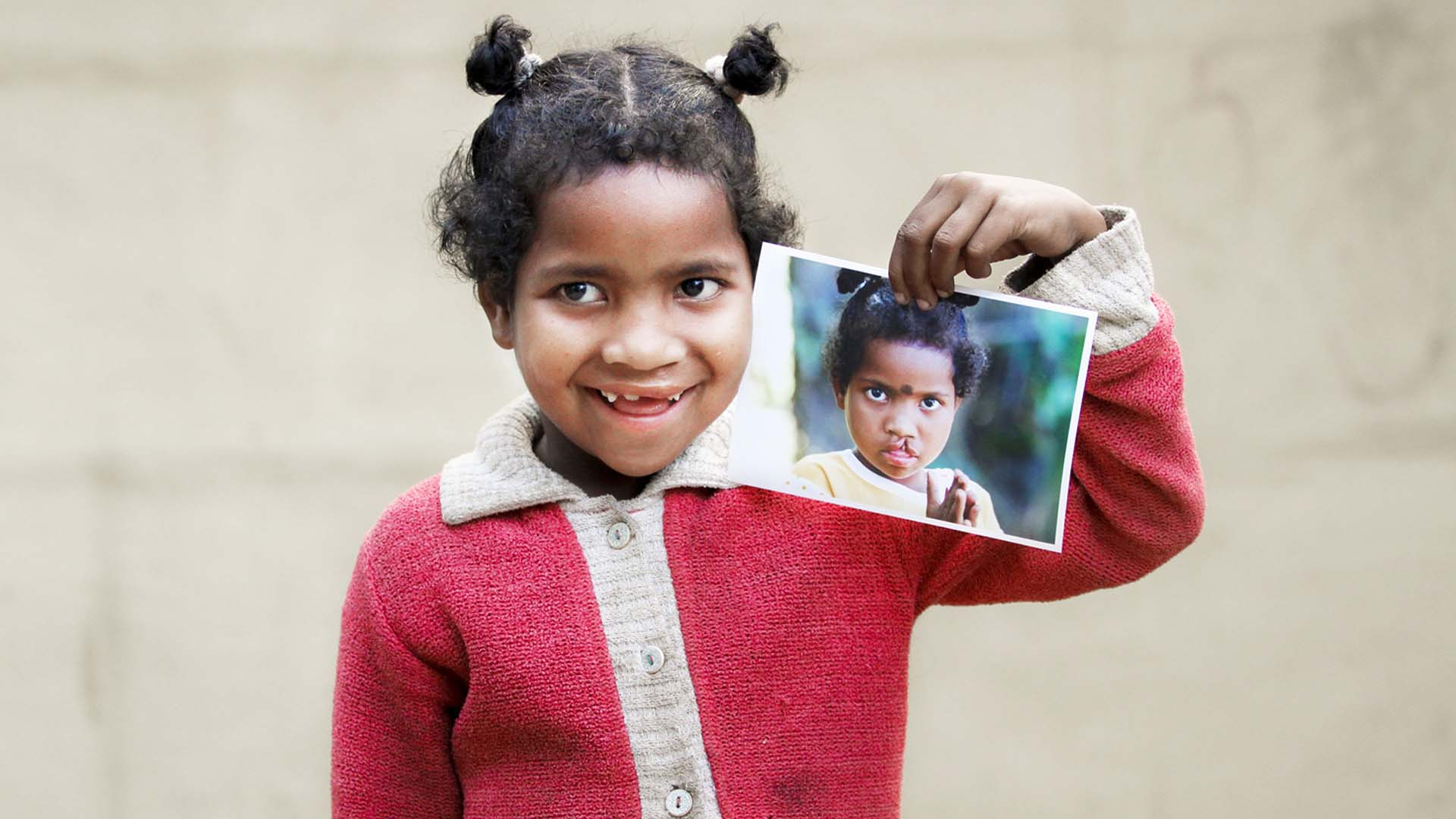 Girl holding picture of herself with cleft lip